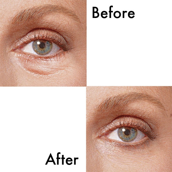 Suddenly Change under eye gel treatment